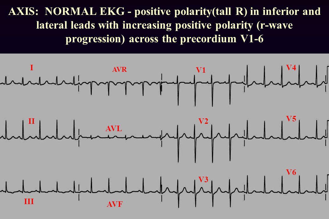 AXIS: NORMAL EKG - positive polarity(tall R) in inferior and lateral leads with increasing positive polarity (r-wave progression) across the precordium V1-6 AVF I II III AVL V1 V2 V3 V4 V5 V6 AVR