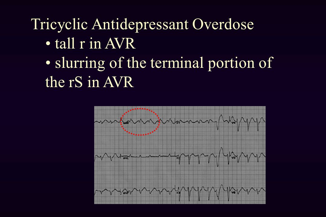 Tricyclic Antidepressant Overdose tall r in AVR slurring of the terminal portion of the rS in AVR