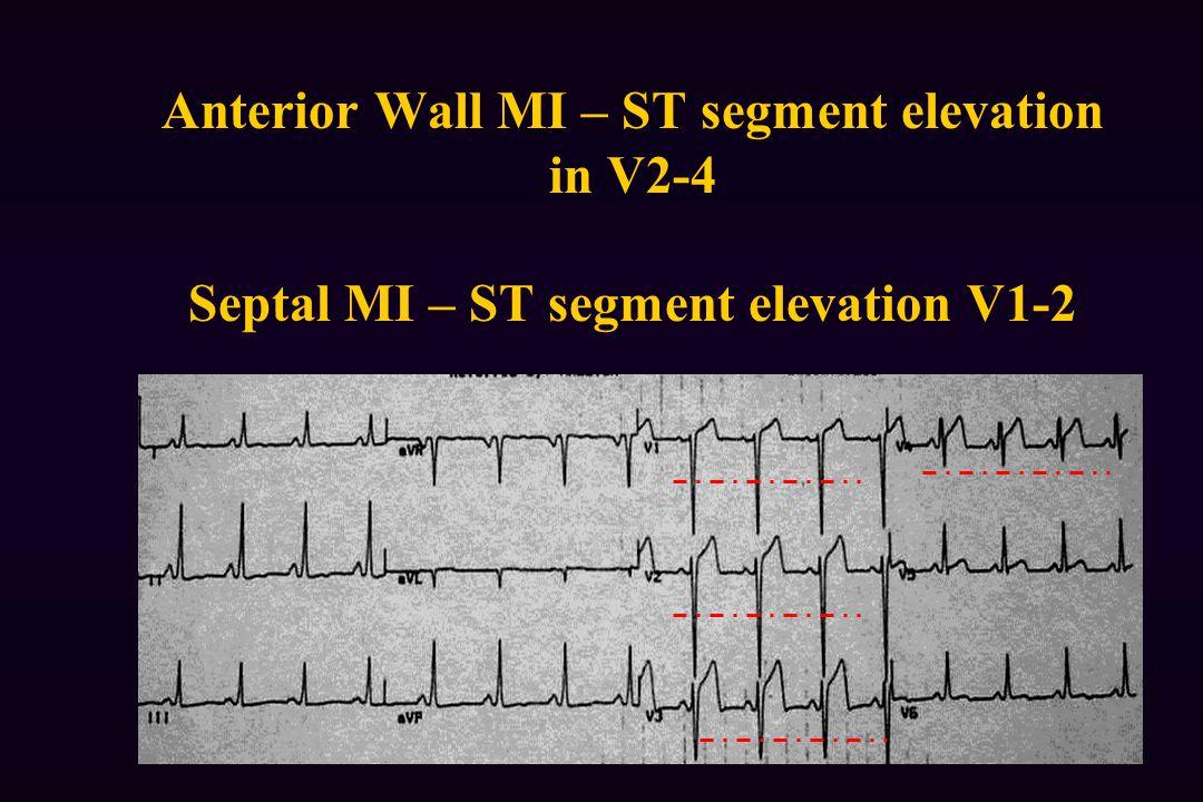 Anterior Wall MI – ST segment elevation in V2-4 Septal MI – ST segment elevation V1-2
