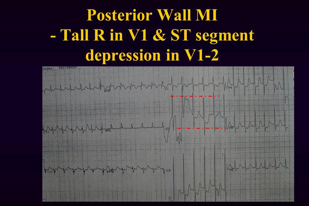 Posterior Wall MI - Tall R in V1 & ST segment depression in V1-2