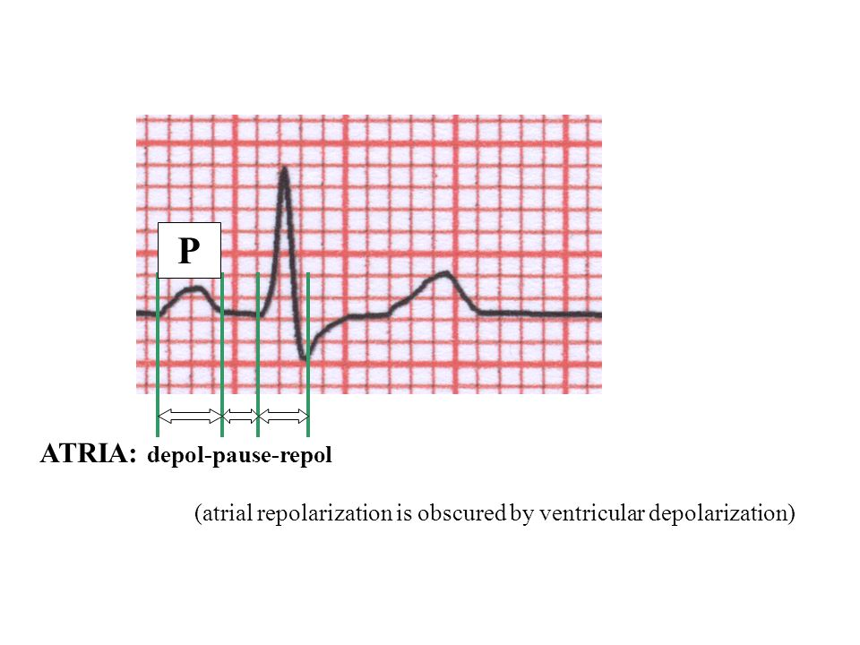 ATRIA: depol-pause-repol (atrial repolarization is obscured by ventricular depolarization) P