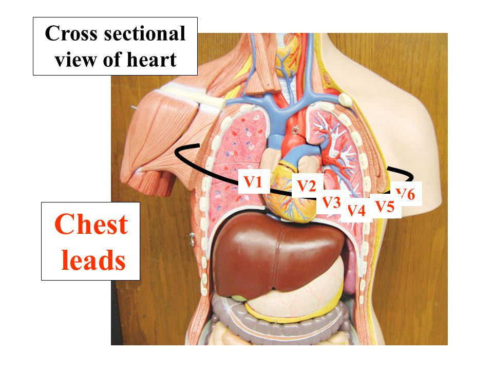 V6 V5 V4 V3 V2 V1 Chest leads Cross sectional view of heart