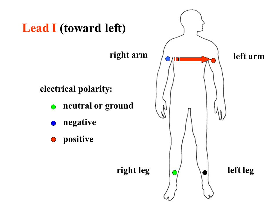 right arm left leg left arm right leg electrical polarity: neutral or ground negative positive Lead I (toward left)