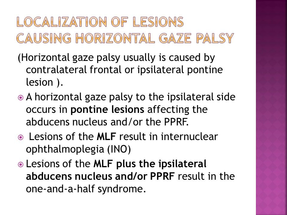 (Horizontal gaze palsy usually is caused by contralateral frontal or ipsilateral pontine lesion ).