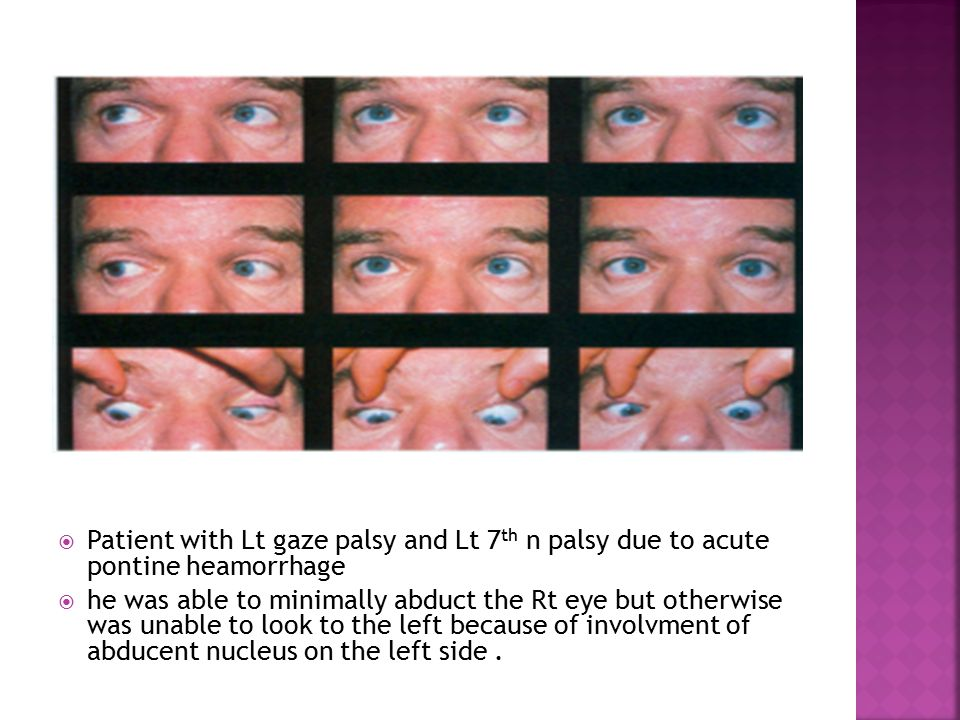  Patient with Lt gaze palsy and Lt 7 th n palsy due to acute pontine heamorrhage  he was able to minimally abduct the Rt eye but otherwise was unable to look to the left because of involvment of abducent nucleus on the left side.