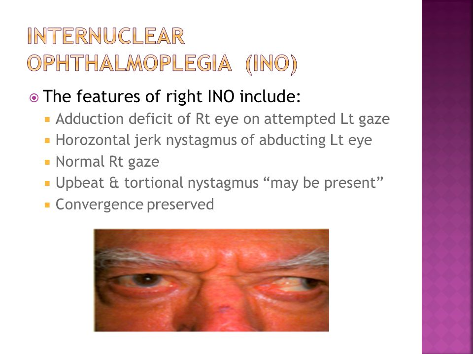  The features of right INO include:  Adduction deficit of Rt eye on attempted Lt gaze  Horozontal jerk nystagmus of abducting Lt eye  Normal Rt gaze  Upbeat & tortional nystagmus may be present  Convergence preserved