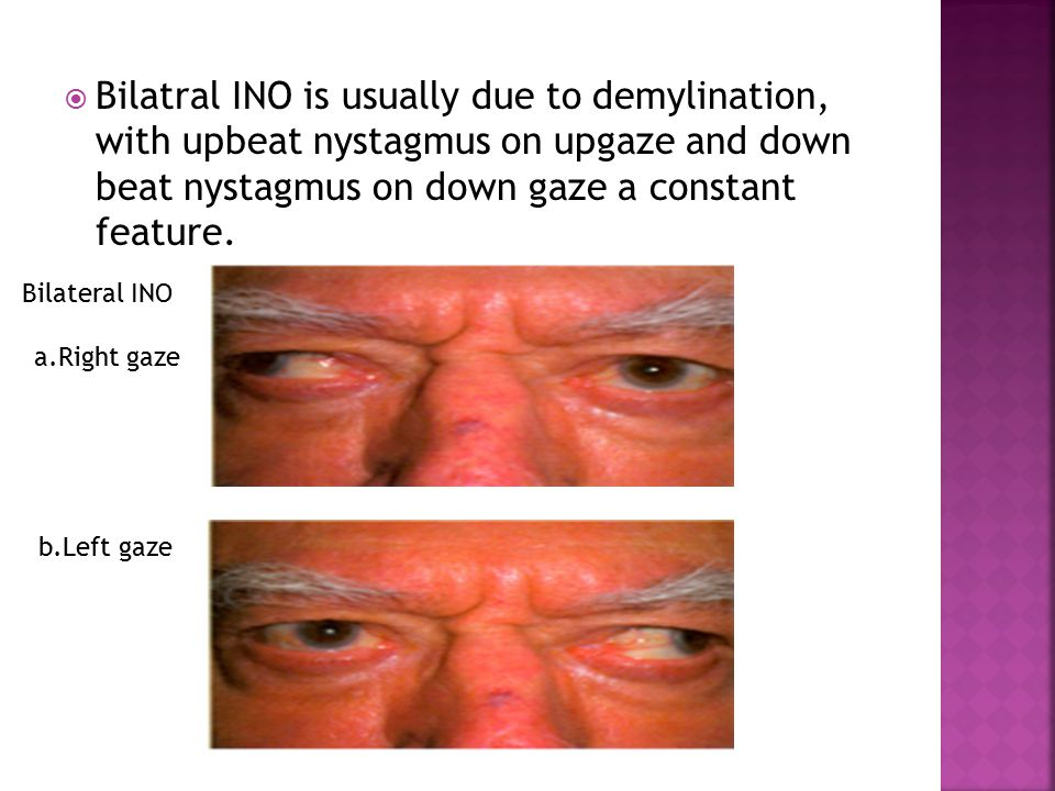  Bilatral INO is usually due to demylination, with upbeat nystagmus on upgaze and down beat nystagmus on down gaze a constant feature.