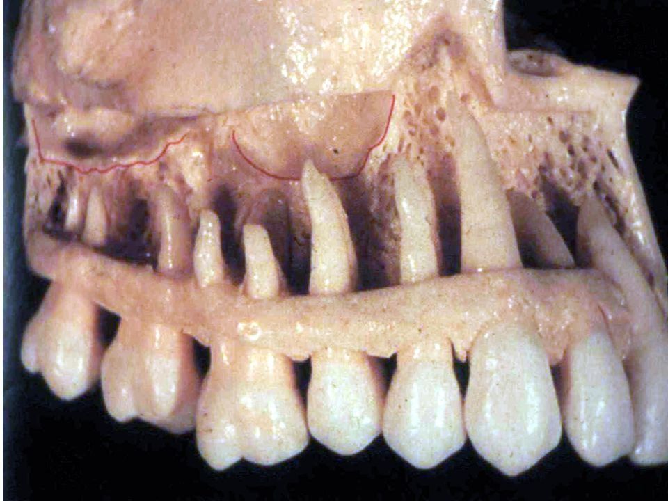 -Ameloblastoma,Diagnosis: 1 -in upper jaw, molar area is the commonest site.