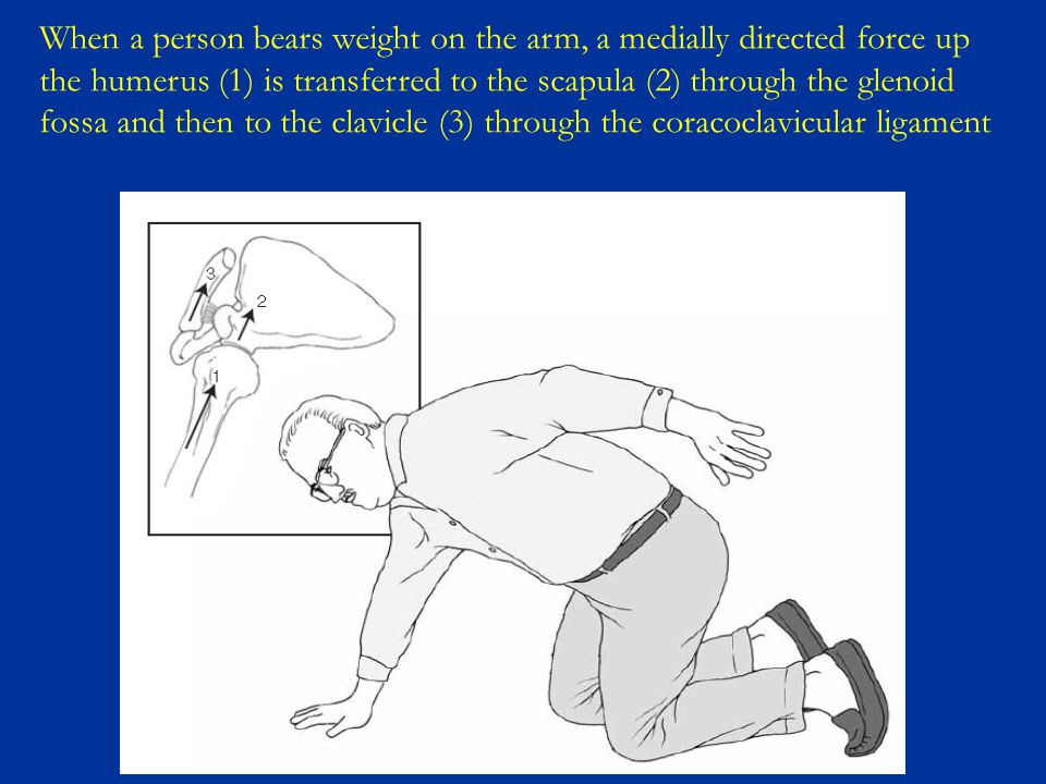 When a person bears weight on the arm, a medially directed force up the humerus (1) is transferred to the scapula (2) through the glenoid fossa and th