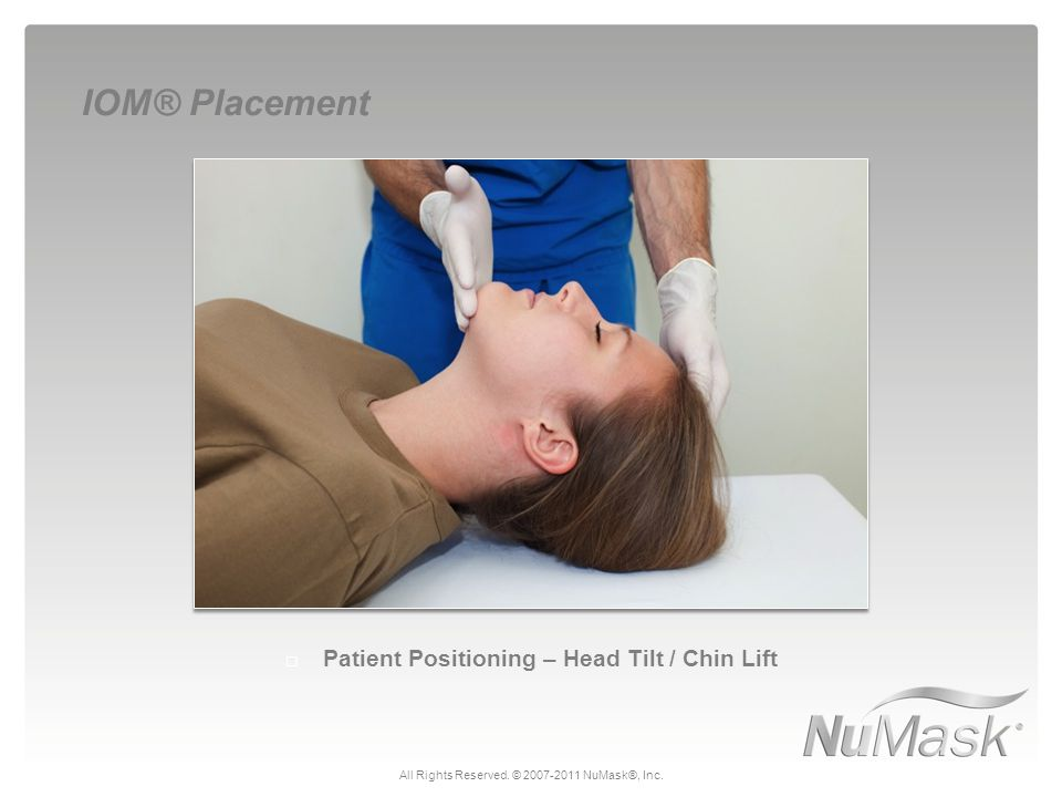  Patient Positioning – Head Tilt / Chin Lift IOM® Placement All Rights Reserved. © 2007-2011 NuMask®, Inc.