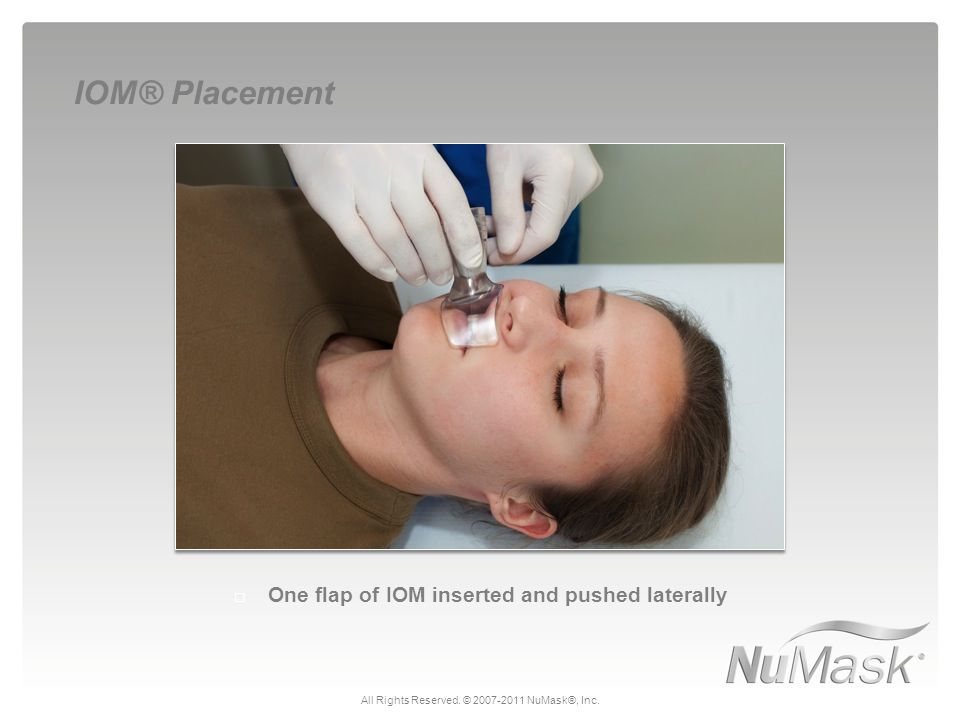  One flap of IOM inserted and pushed laterally IOM® Placement All Rights Reserved. © 2007-2011 NuMask®, Inc.
