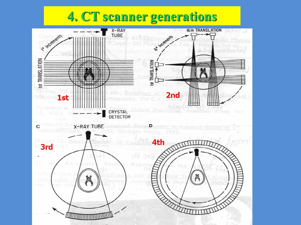 1st 2nd 3rd 4th 4. CT scanner generations