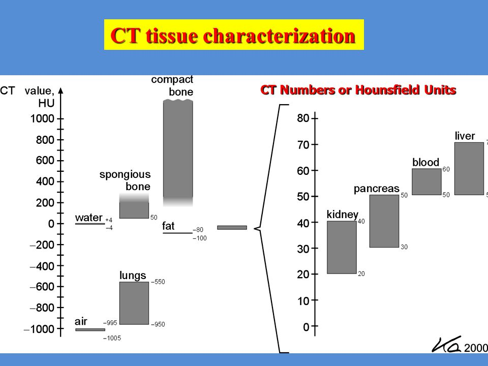 CT Numbers or Hounsfield Units CT tissue characterization