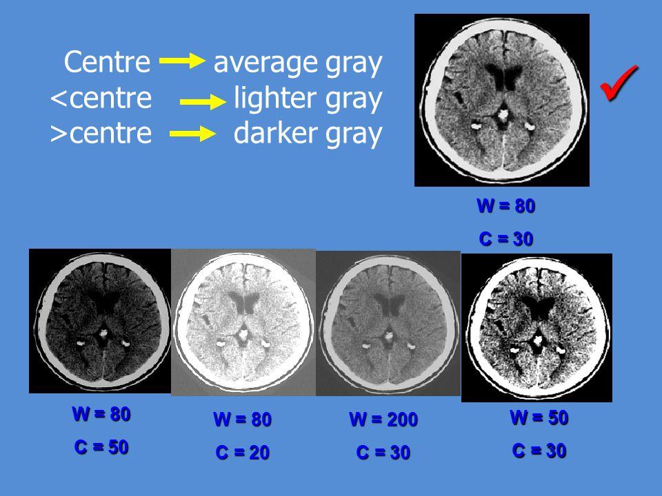 W = 80 C = 50 W = 80 C = 20 W = 200 C = 30 W = 80 C = 30 W = 50 C = 30 Centre average gray <centre lighter gray >centre darker gray