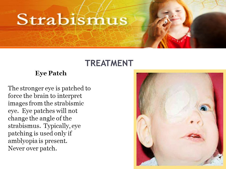 TREATMENT Eye Patch The stronger eye is patched to force the brain to interpret images from the strabismic eye.