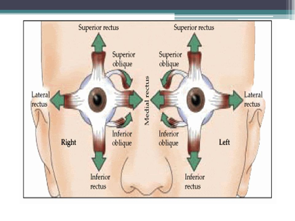 Misalignment of the eye(s) may turn in, out, up, or down can be present in one or both eyes cross-eyed, squint.