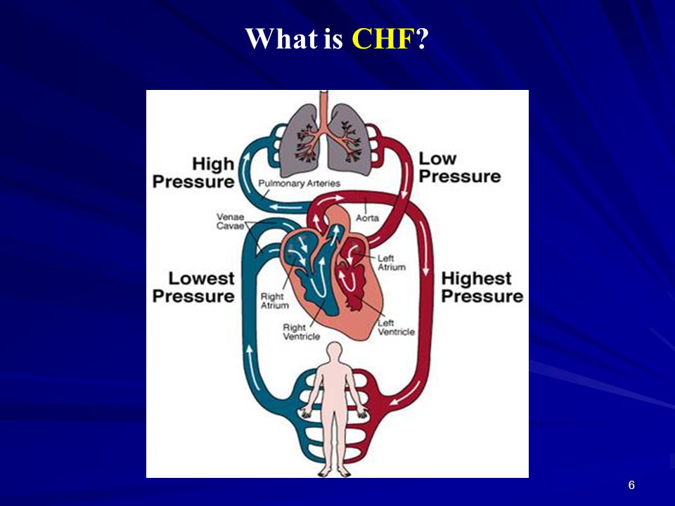 6 What is CHF?