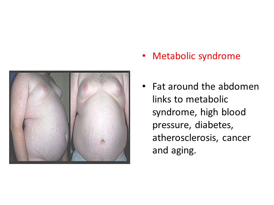 Metabolic syndrome Fat around the abdomen links to metabolic syndrome, high blood pressure, diabetes, atherosclerosis, cancer and aging.
