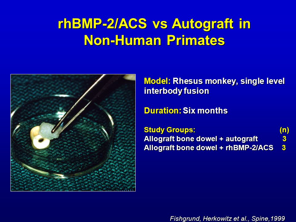 rhBMP-2/ACS vs Autograft in Non-Human Primates Model: Rhesus monkey, single level interbody fusion Duration: Six months Study Groups: (n) Allograft bone dowel + autograft 3 Allograft bone dowel + rhBMP-2/ACS 3 Fishgrund, Herkowitz et al., Spine,1999 Fishgrund, Herkowitz et al., Spine,1999
