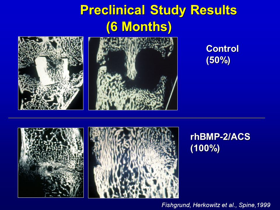 Control(50%) Preclinical Study Results (6 Months) Preclinical Study Results (6 Months) rhBMP-2/ACS(100%) Fishgrund, Herkowitz et al., Spine,1999