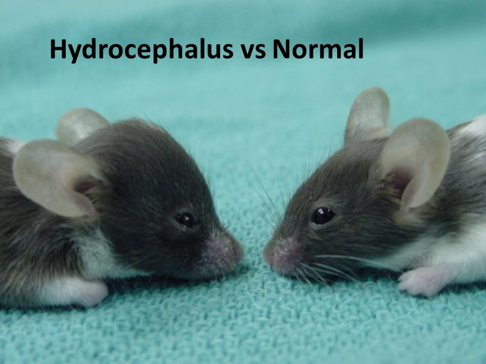 Hydrocephalus vs Normal