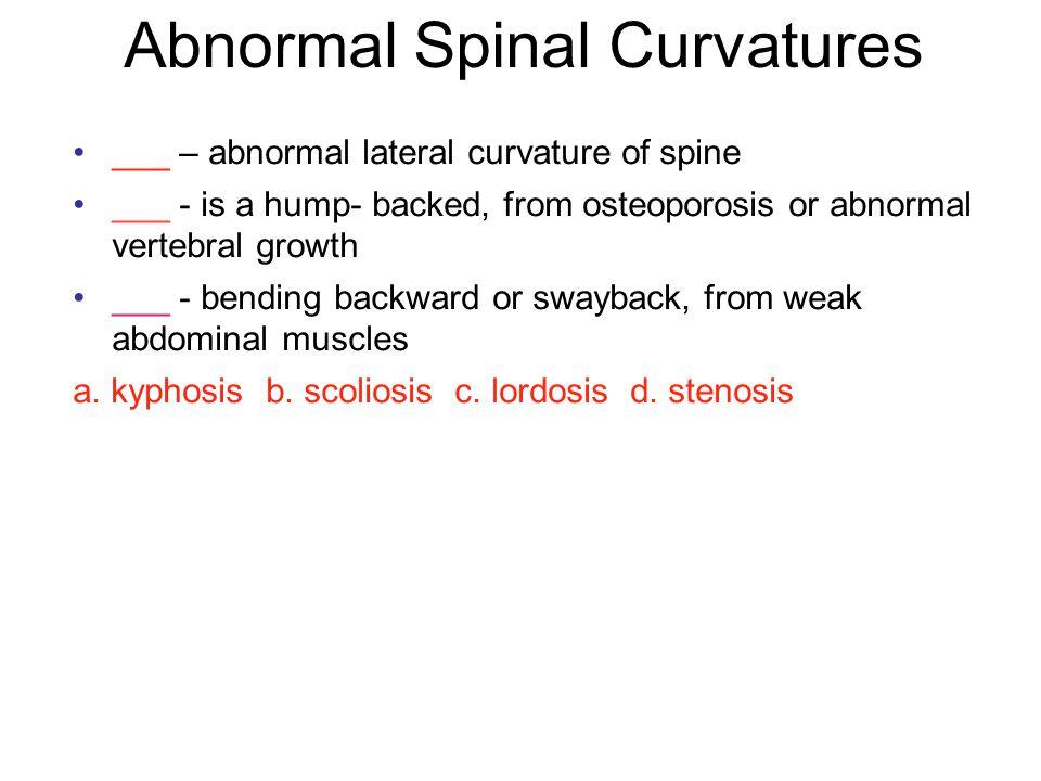 General Structure of Vertebra Vertebral Body Vertebral foramen Vertebral arch –2 lamina –2 pedicles Processes –spinous, transverse and articular