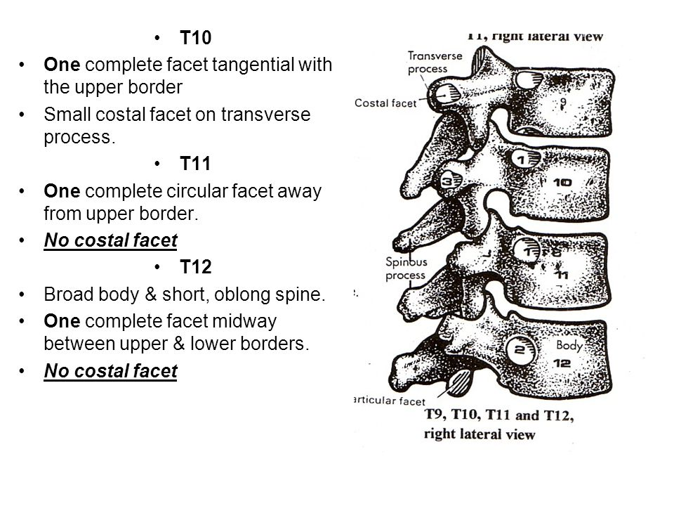 T10 One complete facet tangential with the upper border Small costal facet on transverse process. T11 One complete circular facet away from upper bord