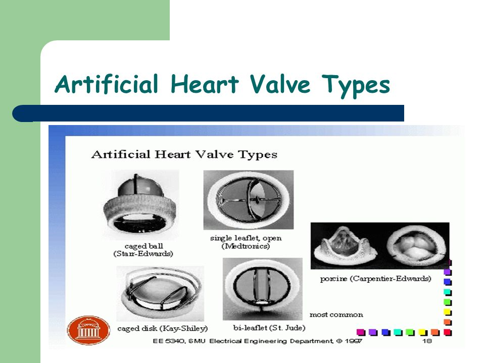 Artificial Heart Valve Types