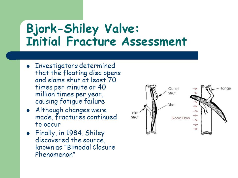 Bjork-Shiley Valve: Initial Fracture Assessment Investigators determined that the floating disc opens and slams shut at least 70 times per minute or 40 million times per year, causing fatigue failure Although changes were made, fractures continued to occur Finally, in 1984, Shiley discovered the source, known as Bimodal Closure Phenomenon