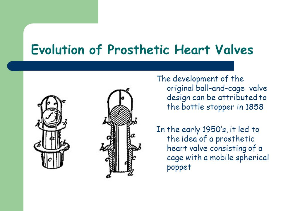 Evolution of Prosthetic Heart Valves The development of the original ball-and-cage valve design can be attributed to the bottle stopper in 1858 In the early 1950's, it led to the idea of a prosthetic heart valve consisting of a cage with a mobile spherical poppet