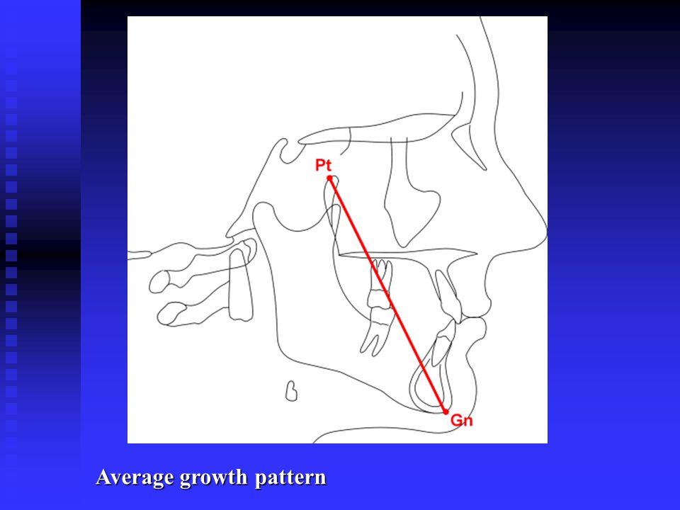 Average growth pattern