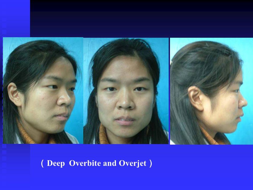 ( Deep Overbite and Overjet )