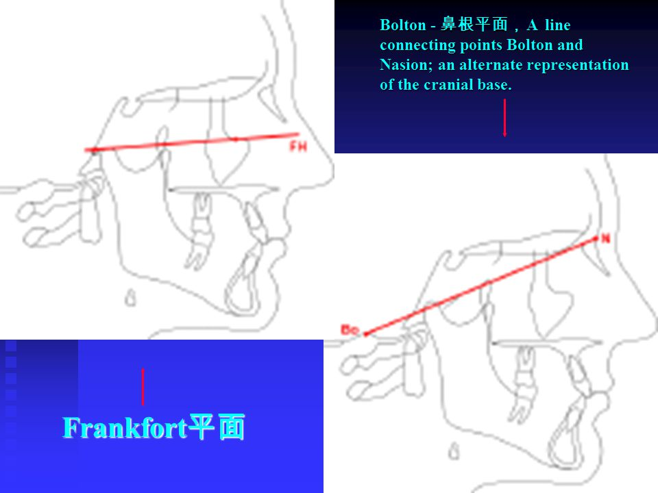 Bolton - 鼻根平面, A line connecting points Bolton and Nasion; an alternate representation of the cranial base. Frankfort 平面