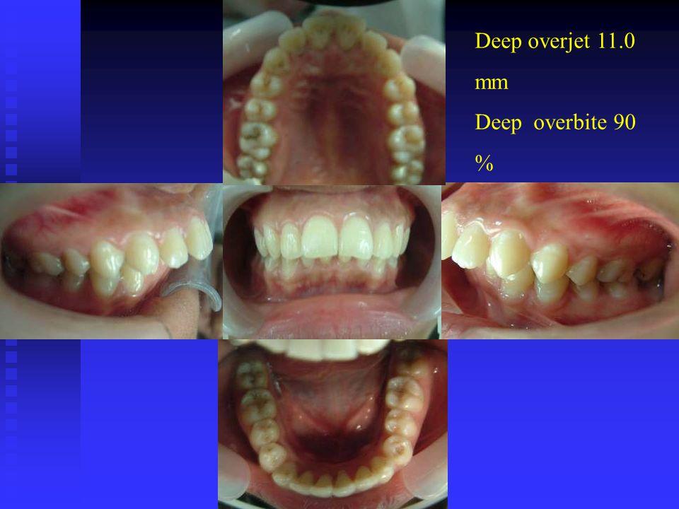 Deep overjet 11.0 mm Deep overbite 90 %