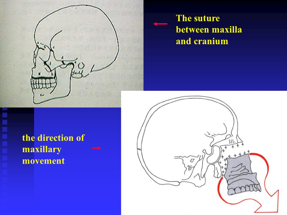 The suture between maxilla and cranium the direction of maxillary movement