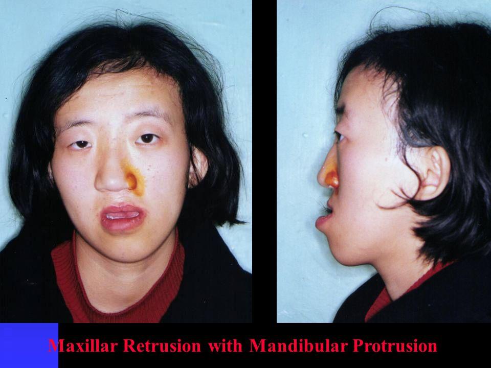 Maxillar Retrusion with Mandibular Protrusion
