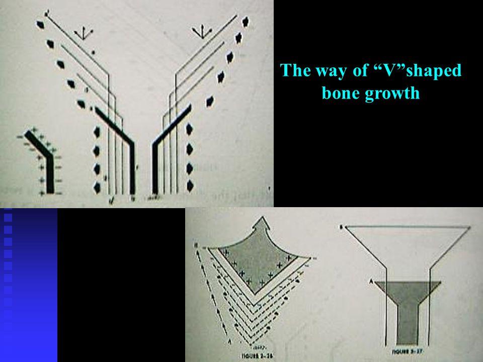 "The way of ""V""shaped bone growth"