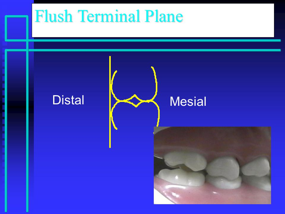 Distal Mesial Flush Terminal Plane