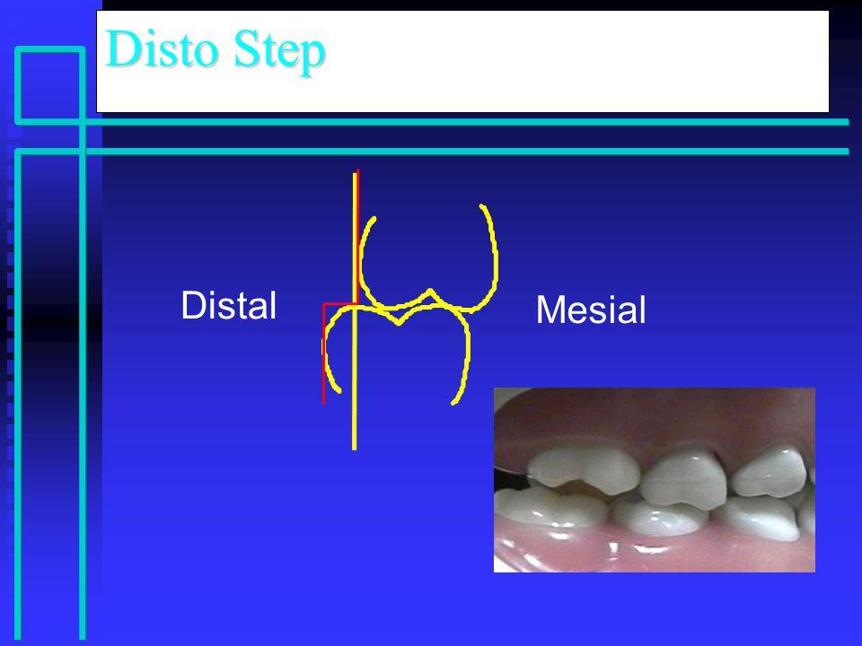 Distal Mesial Disto Step