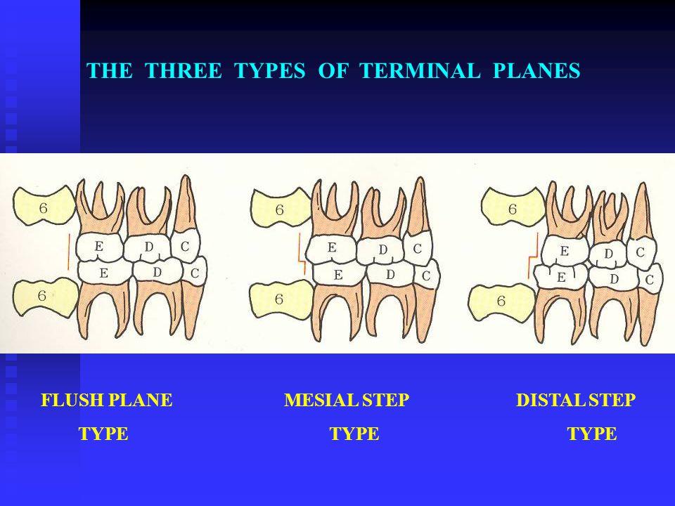 THE THREE TYPES OF TERMINAL PLANES FLUSH PLANE MESIAL STEP DISTAL STEP TYPE TYPE TYPE