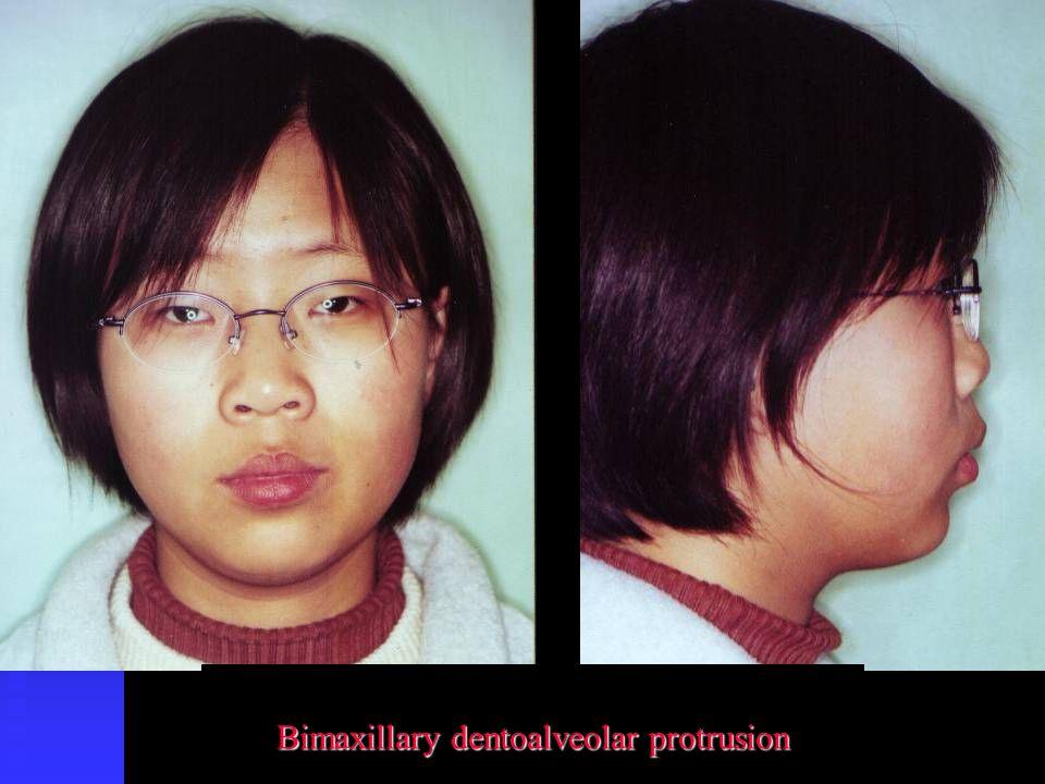Bimaxillary dentoalveolar protrusion