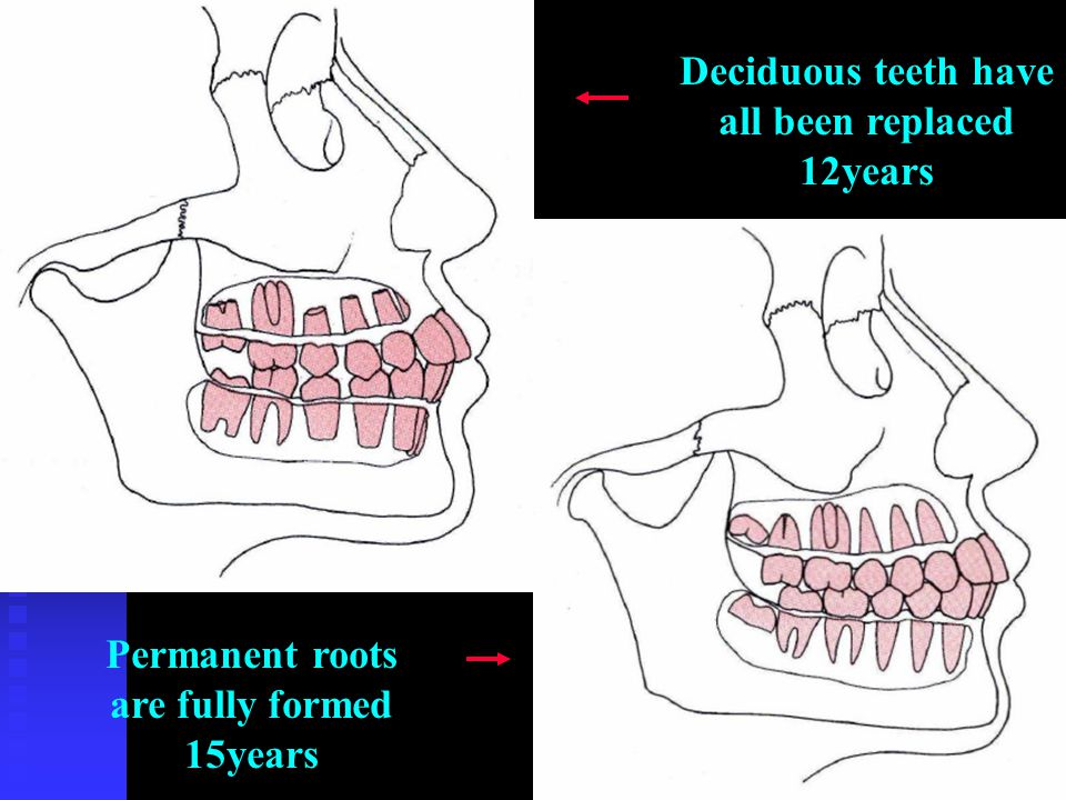 Deciduous teeth have all been replaced 12years Permanent roots are fully formed 15years