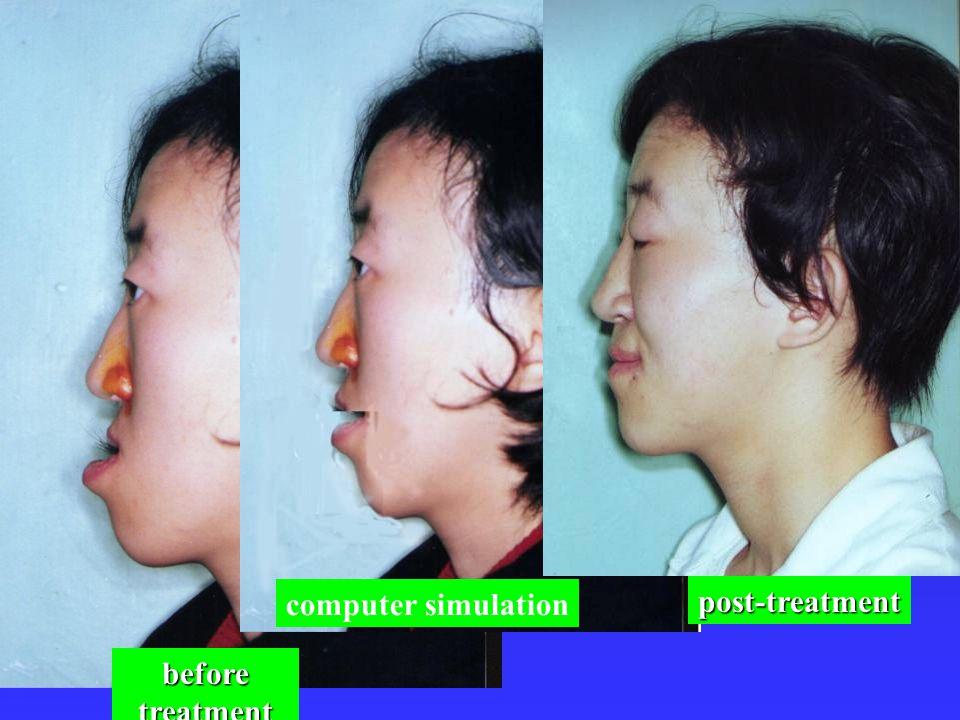 computer simulation post-treatment before treatment