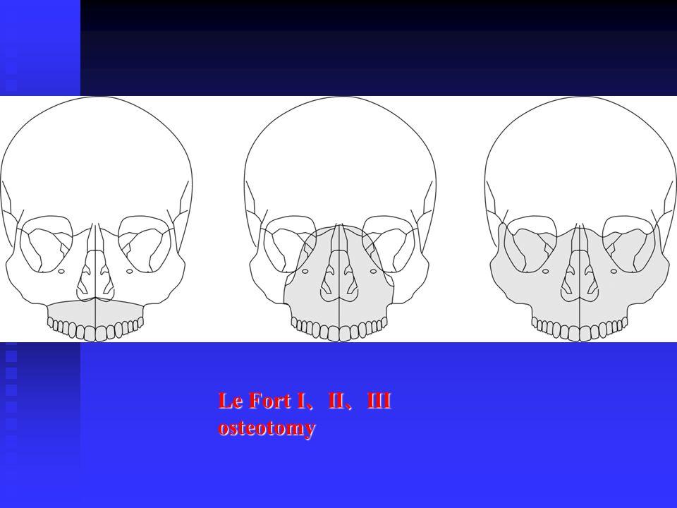 Le Fort I 、 II 、 III osteotomy