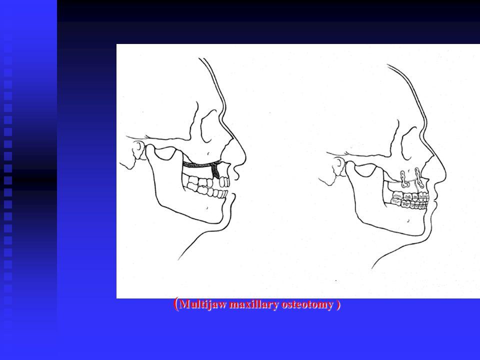 ( Multijaw maxillary osteotomy )