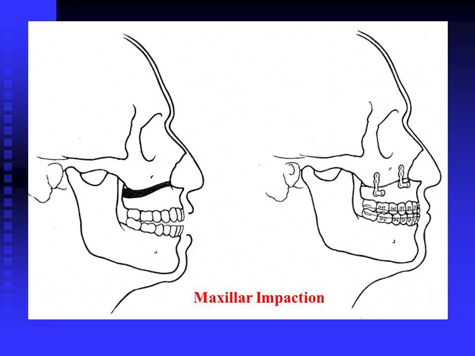 Maxillar Impaction