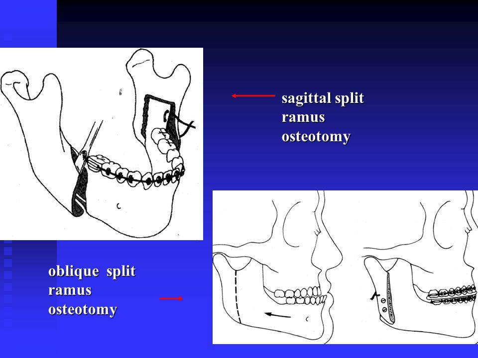 oblique split ramus osteotomy sagittal split ramus osteotomy