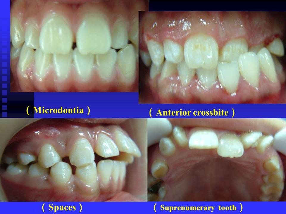 ( Microdontia ) ( Anterior crossbite ) ( Spaces )( Suprenumerary tooth )