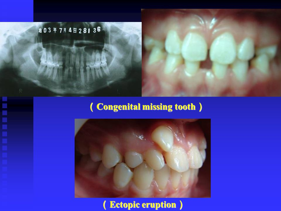( Congenital missing tooth ) ( Ectopic eruption )
