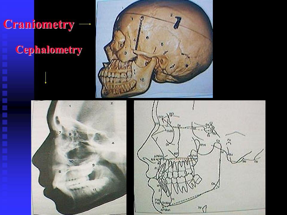 Craniometry Cephalometry Cephalometry
